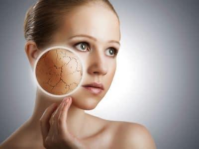 درمان خشکی پوست صورت و بدن